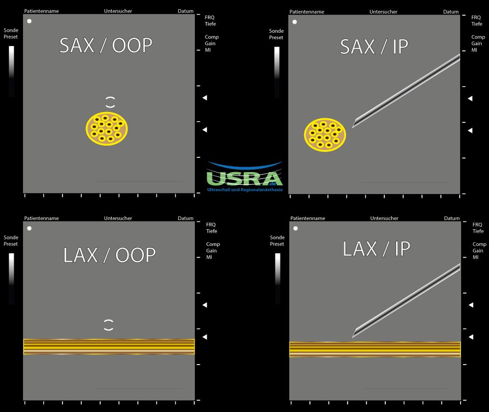 Grundlagen-SAX-LAX-IP-OOP