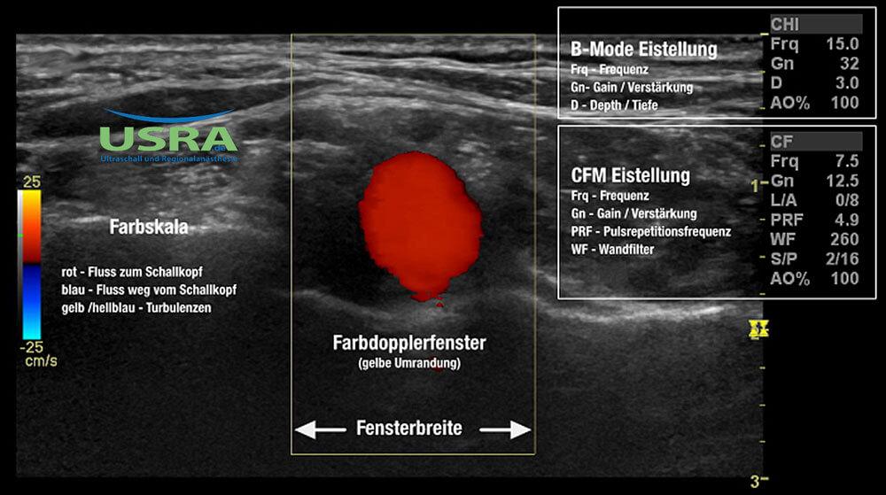 B-Bild-CFM-uberlagert